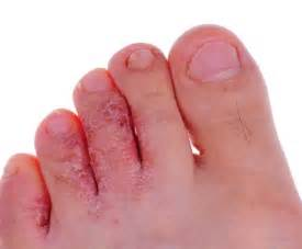 foot skin infections picture 1
