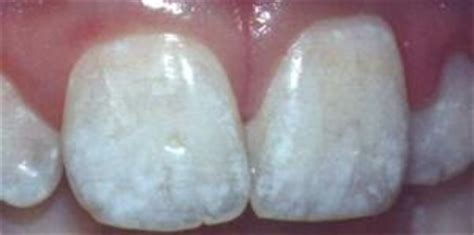 calcium deposit on teeth picture 3