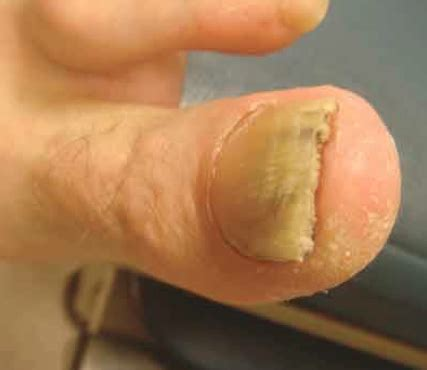 diabetes yeast infection picture 5