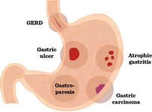 upper gastrointestinal diseases picture 3
