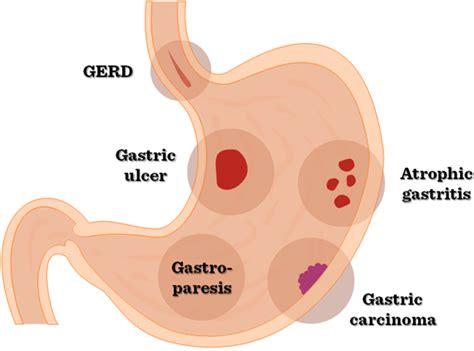 upper gastrointestinal disease picture 6