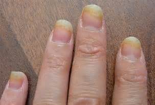 pitcures of nail fungus picture 3