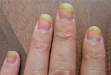what to use for nail fungus picture 4