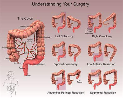 colon resection surgery picture 5