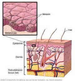 diabetes skin picture 9