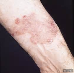 genitile herpes pictures picture 11