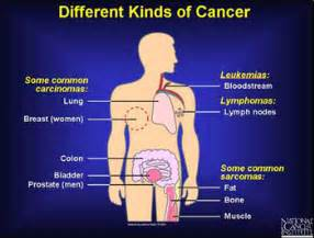 does breast cancer spread without any symptons present picture 2