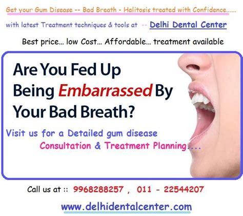 due wisdom teeth cause chronic bad breath picture 2