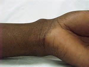 does oregano oil dissolve ganglion cysts picture 15