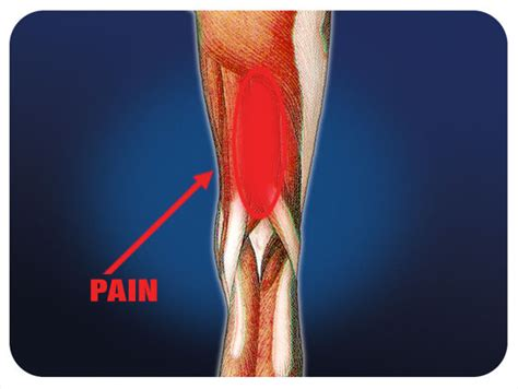 diagnose muscle tears picture 13