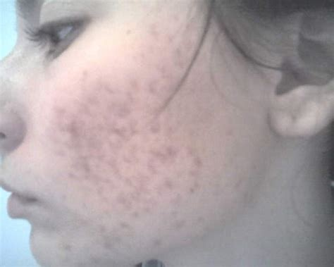 acne marks picture 11