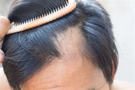 causes hair loss picture 1