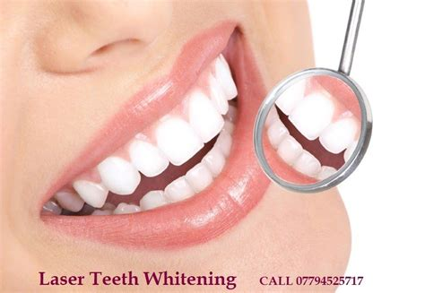 teeth whitening laser picture 5