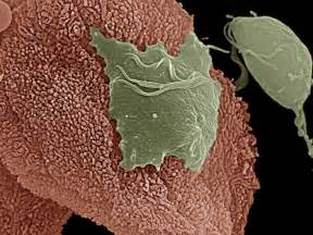 microscopic human skin parasites picture 14