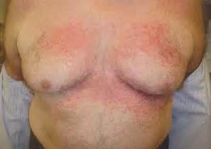 fungal infection of the skin candidiasis. picture 9