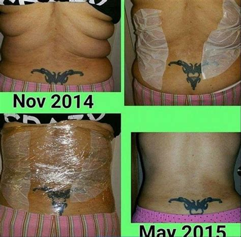 effects of vicks stomach wrap picture 2