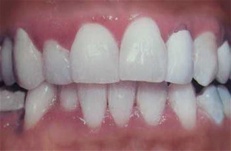orlando teeth whitening picture 10