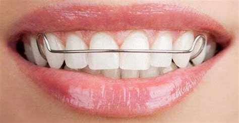 white gold teeth picture 7