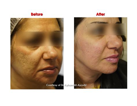 wrinkle skin after hysterectomy picture 14