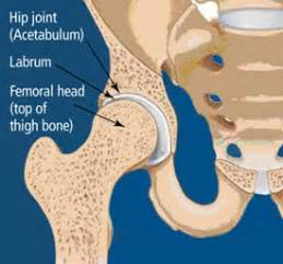 does prednisone damage hip joint picture 11