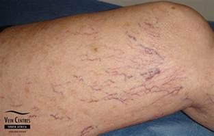 spiderlike veins under the skin picture 18