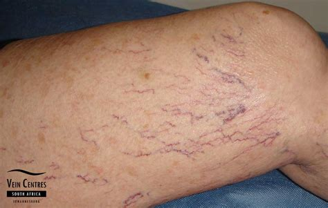 small red spider veins under skin of monis picture 1