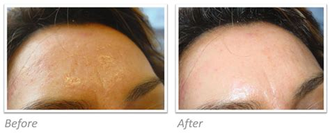 what is side effects of dermapen picture 10