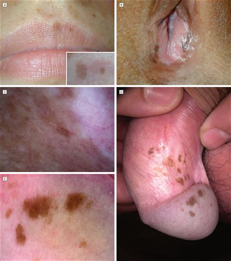 vaginal skin disease picture 2