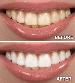 before and after h whitening picture 1