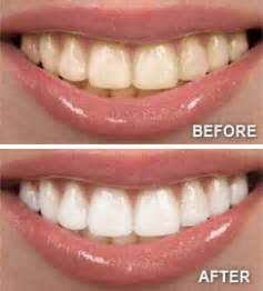 ellicott city teeth whitening picture 1