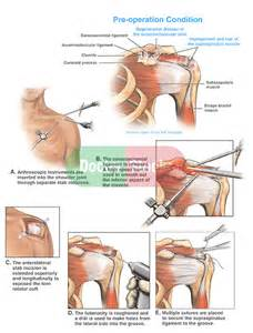 degenerative joint disease of the left shoulder picture 18