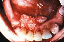 chewing tobacco and herpes picture 5