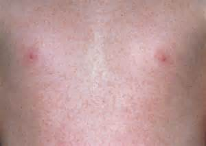 skin rashes in infants and toddlers picture 2