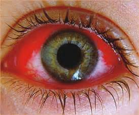 bacterial eye infection picture 5