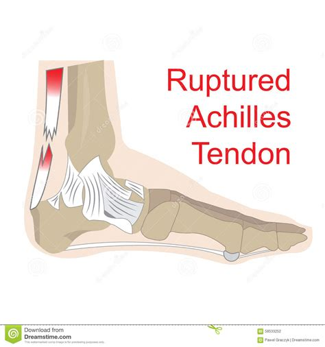 ankle joint effusion and ruptured achilles tendon picture 1