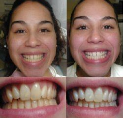 new york tooth bleaching picture 1