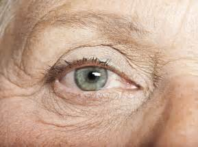 aging eyes picture 2