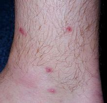 a few herpes appearing on top of thigh picture 15