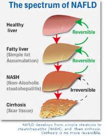 non alcoholic fatty liver picture 10