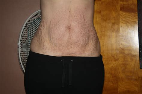 will tanning make stretch marks worse picture 13