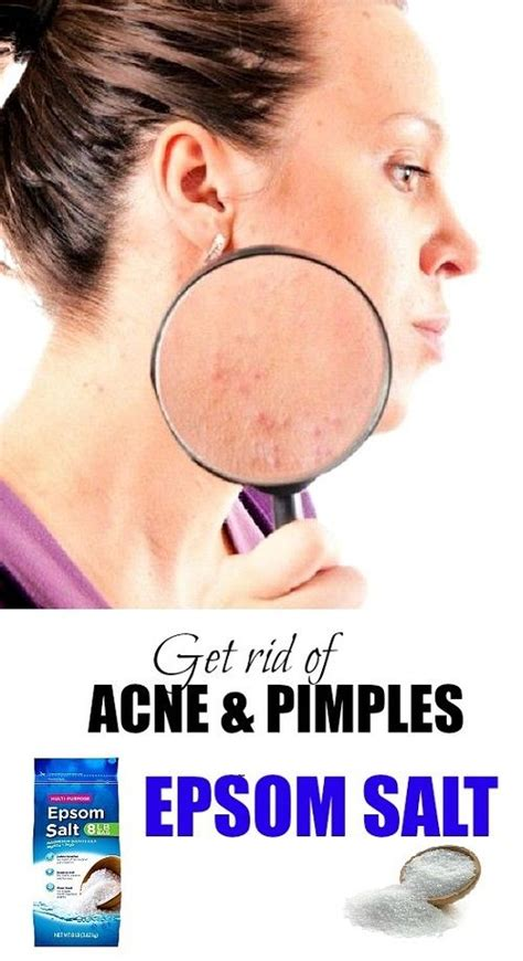 cure acne aip picture 1
