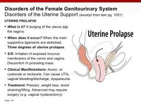 can prolapsed bladder cause vaginal spotting picture 11