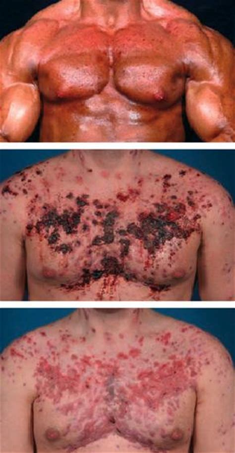 acne with testosterone picture 1