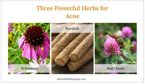 naive herbs treatment for acne picture 1
