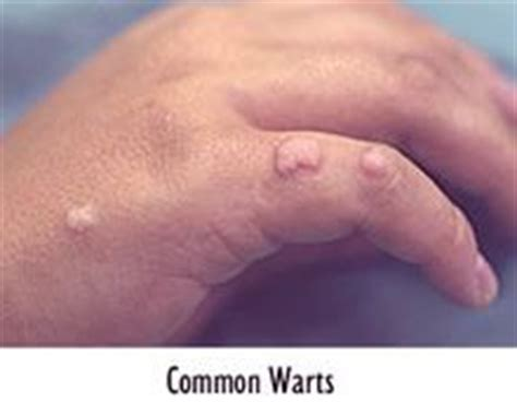 natural cure for genital warts picture 3