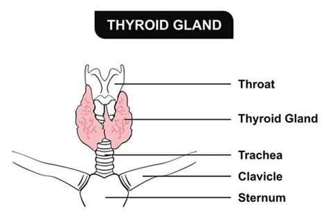 causes of heterogenous echotexture of thyroid picture 9