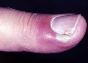 paronychia infection home remedy picture 21