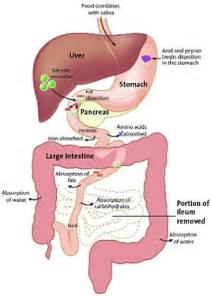 short bowel syndrome picture 6
