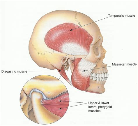 temporomandibular joint syndrome picture 10
