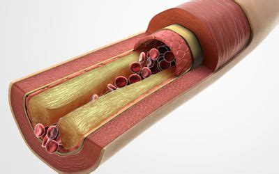 Tips for lowering cholesterol picture 10